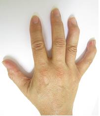 へバーデン結節 症状 第一関節(DIP関節)の痛み 変形